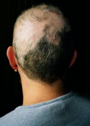 Лечение трихотилломании