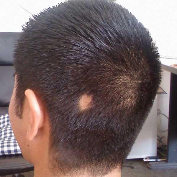 выпадение волос у девочки 10 лет