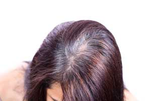 Причины сидения волос