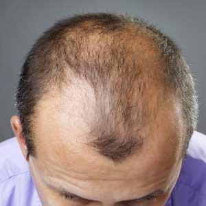 Почему у мужчины выпадают волосы