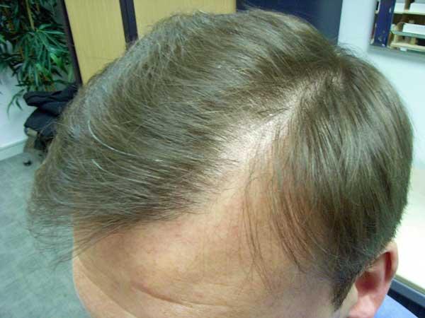 Начало выпадения волос
