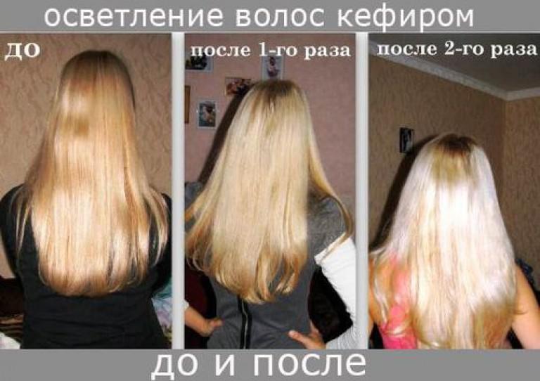 легкой обесцвечивание волос отзывы фото до и после причины появление кровавого